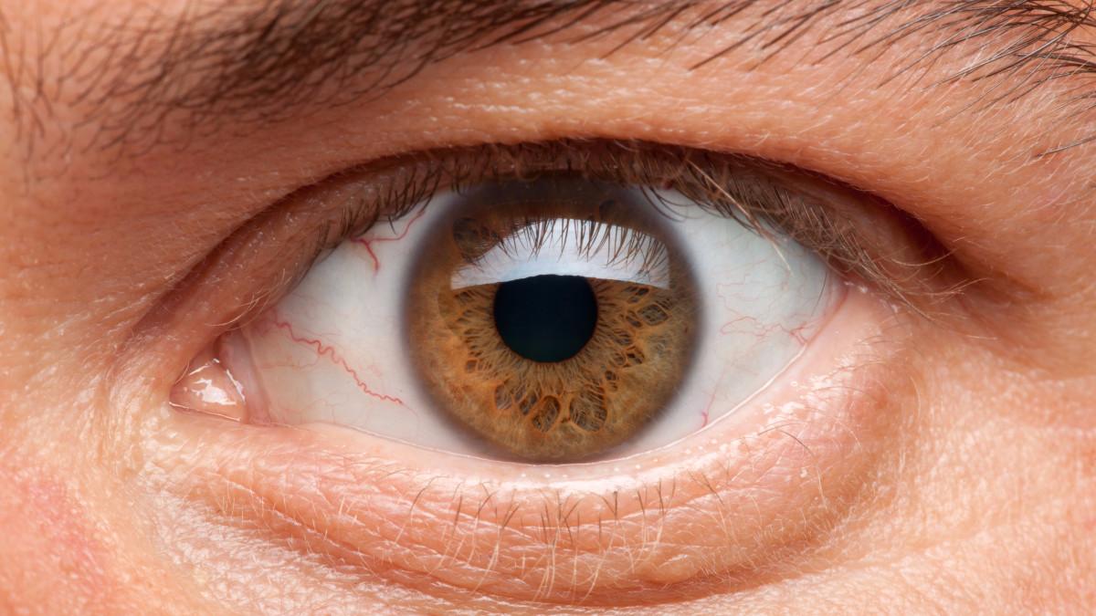 tension ocular