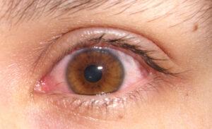 destellos de luz en los ojos