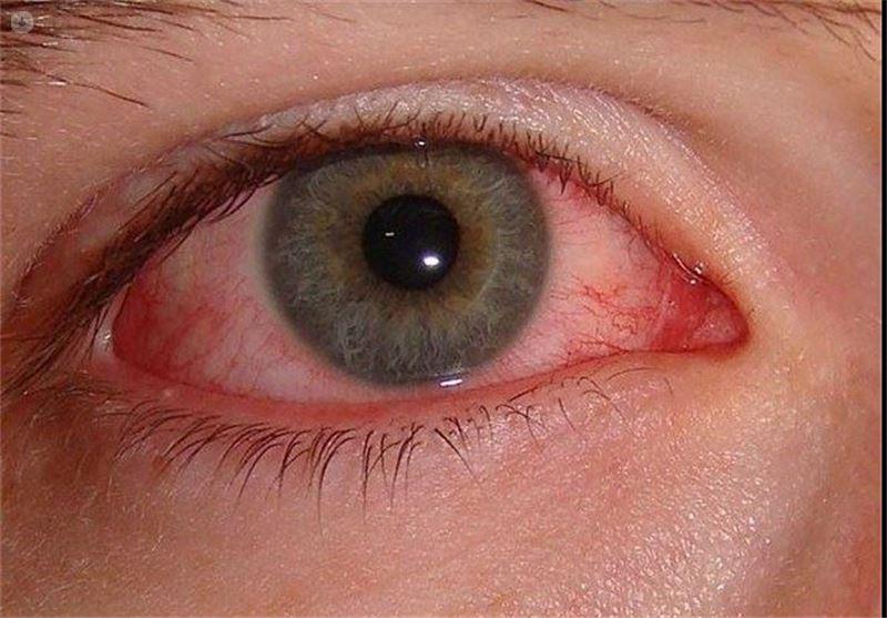 epifora ocular