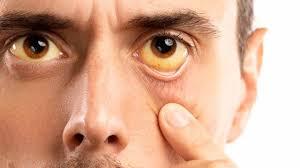 ojos amarillentos Ictericia