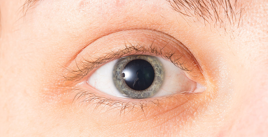 midriasis-pupila-dilatada