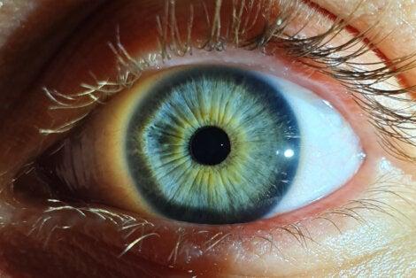 pupilas mioticas