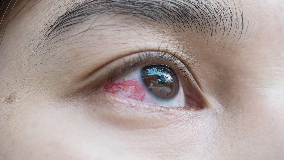 rojo en los ojos