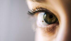 nevus-ocular